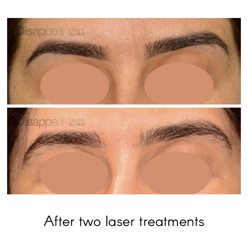 Eyebrow Tattoo Removal after Two Treatments